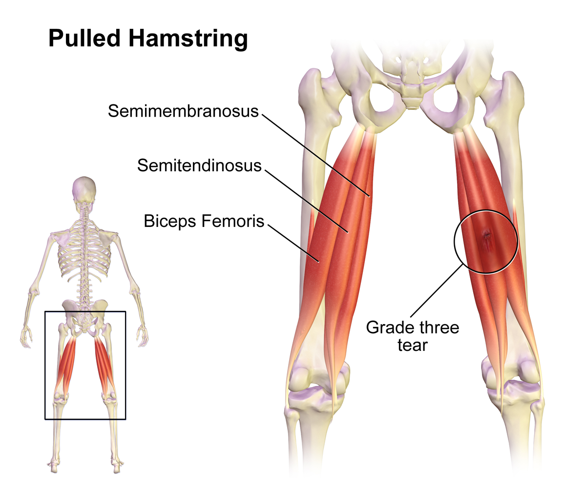 Hamstring Strain - Holistic Bodyworks - South East Melbourne