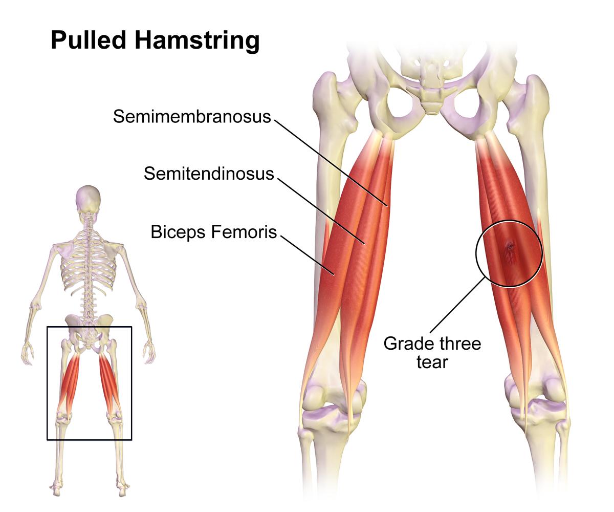 Hamstring-Strain