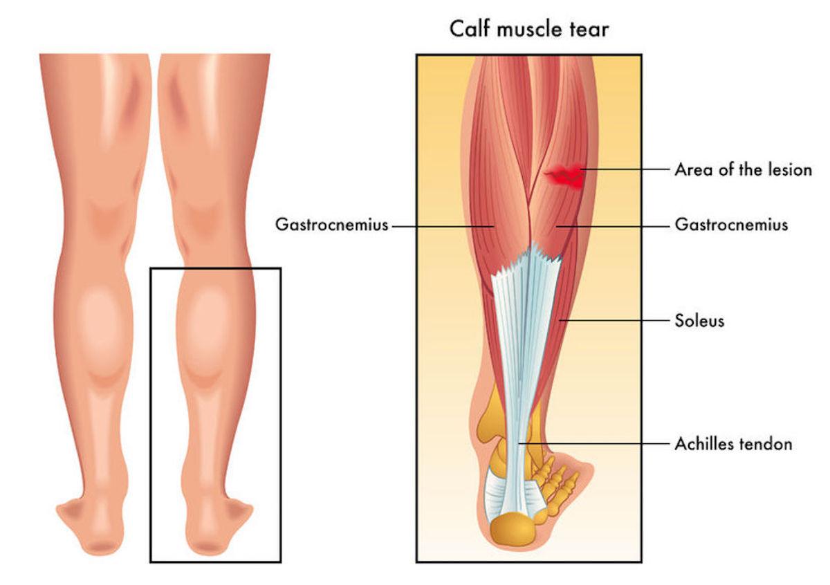 Calf-Strain