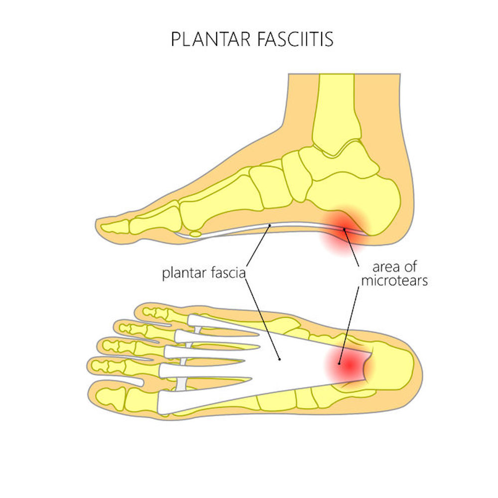 Image depicting the Plantar Fascia attachments and the location of pain in Plantar Fasciitis