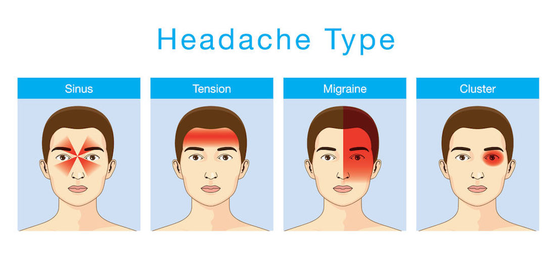 Image depicting the different types of headaches