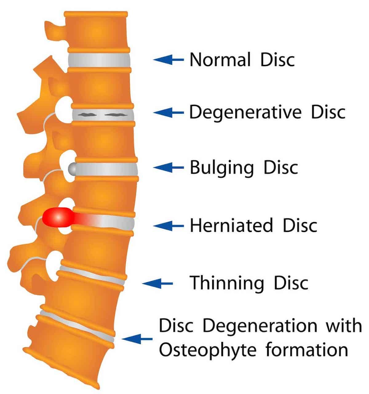 Image showing the different forms of disc injury such as disc bulge