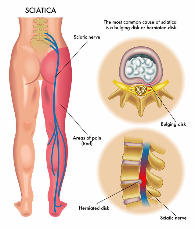 Image depicting the main causes of sciatica