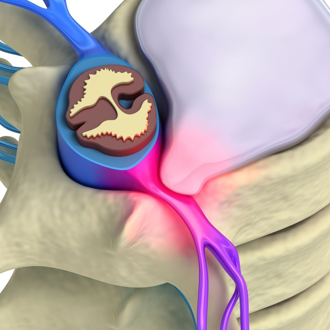 Image depicting a lumbar disc prolapse