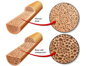 Image showing the process of Osteoporosis